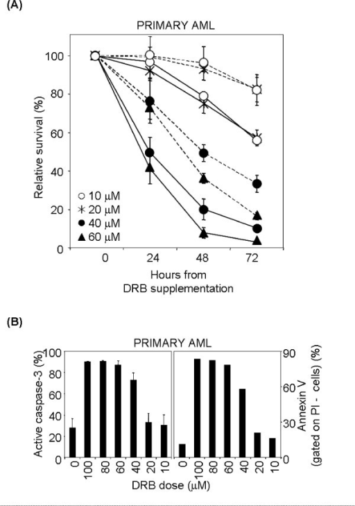 Sensitivity to DRB-induced apoptosis in primary AML sample. (A) Differential effect of DRB against tumour versus non-malignant cells. Total nucleated cells separated from the bone marrow of an AML patient were kept in medium alone or containing 10–60 μM DRB, harvested at 24, 48 and 72 hr and analysed by flow cytometry after stainig with anti-CD45 antibody and PI. Blast cells (unbroken line) were selected based on CD45/SSC parameters. Non-malignant cells (broken line) were selected by exclusion of blast cells and debris. Viability of tumour versus non-malignant cells differed in a statistically significant way (p < 0.005 with the test of independence at all doses analysed). (B) DRB treatment induces apoptosis in primary AML cells. Left panel: AML cells were kept for 24 hr in medium alone or containing 10–100 μM DRB, harvested and stained with anti-active caspase-3 antibody (left panel) or annexin V and PI (right panel). Histograms show the percentage of active caspase-3+ cells (mean ± S.D. of two independent experiments) and PI- annexin V+ cells.