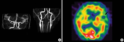 Angiography and single photon emission computed tomography (SPECT). (A) MR angiography of the brain and neck showed no abnormalities. (B) The SPECT with 99mTc-HMPAO showed focal hypoperfusion in the left temporal lobe.