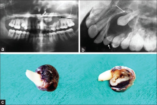 (a) Orthopantamograph shows well defined radiolucency with impacted 23. (b) Occlusal radiograph also shows well defined radiolucency with impacted 23. (c) Gross examination shows a globular mass, brownish black in color, firm in consistency with tooth attached to the specimen at the cervical area