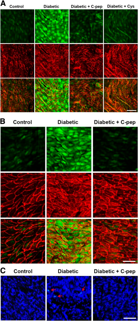 C-peptide inhibits hyperglycemia-induced stimulation of transamidating activity and apoptosis in mice aortic segments. Transamidating activity (green) in aortic segments was double-stained with endothelial cell marker platelet endothelial cell adhesion molecule-I (red). A: Inhibition of hyperglycemia-induced stimulation of transamidating activity by ex vivo treatment of C-peptide (C-pep) or cystamine (Cys; n = 6 per group). B and C: C-peptide replacement therapy inhibits hyperglycemia-induced stimulation of transamidating activity and apoptosis in vivo (n = 8 for control and diabetes, n = 7 for diabetes + C-peptide). C: Apoptotic cells in aortic segments were stained by TUNEL (green, indicated by arrows) with nuclear counterstaining using Hoechst dye 33258 (blue). Bar: 50 μm. (A high-quality color representation of this figure is available in the online issue.)