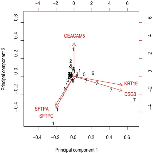 Biplot showing principal component analysis of CK19, CEACAM5, DSG3, SFTPA and SFTPC mRNA level in the 55 primary tumor biopsies.Black numbers indicate histology type (1 = adenocarcinoma, 2 = adenosquamous carcinoma, 3 = bronchioloalveolar carcinoma, 4 = carcinoid, 5 = large cell carcinoma, 6 = small cell carcinoma, 7 = squamous cell carcinoma).