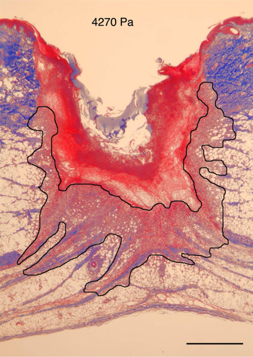 A) Masson Trichrome stained specimens showing granulation tissue regeneration in 4-day porcine excisional wounds as a function of hydrogel stiffness. Black lines encompass granulation tissue. No treatment: a partial rim of nascent pink granulation tissue appeared under the fibrin clot. 95 Pa hydrogel: a rim of granulation tissue underlies the fibrin clot. 550 Pa hydrogel: Increased granulation tissue appeared under the fibrin clot compared to no treatment control and 95 Pa hydrogel. 4270 Pa hydrogel: A remarkable increase in granulation tissue ingrowth (en masse fibroblast movement) appeared to be displacing the fibrin clot. B) Histogram of results. N=6. * indicates P < 0.05 by ANOVA and Tukey post-hoc analysis. Bars = 2mm