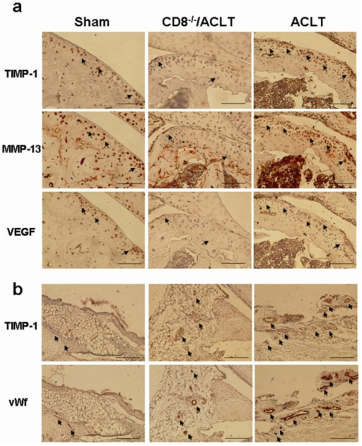 Immunohistochemical staining for TIMP-1, MMP-13, and VEGF in the joints of mice with OA. Representative immunohistochemical images of the cartilage and synovium are shown (n = 5 per group) (a) Higher TIMP-1, MMP-13, and VEGF expression was seen in the superficial cartilage and in the osteochondral cartilage junctions of ACLT-group mice than in Sham- and CD8−/−/ACLT-group mice 90 days post-surgery (IHC stain; 200× magnification; scale bar = 50 μm). The overlapped locations of three gene expressions are indicated with arrows; and (b) Higher TIMP-1 expression and more abundant angiogenesis were seen in ACLT-group mice synovia than in Sham- and CD8−/−/ACLT-group mice synovia (IHC stain; 200× magnification; scale bar = 50 μm). The overlapped locations of TIMP-1 and vWf expression are indicated with arrows.