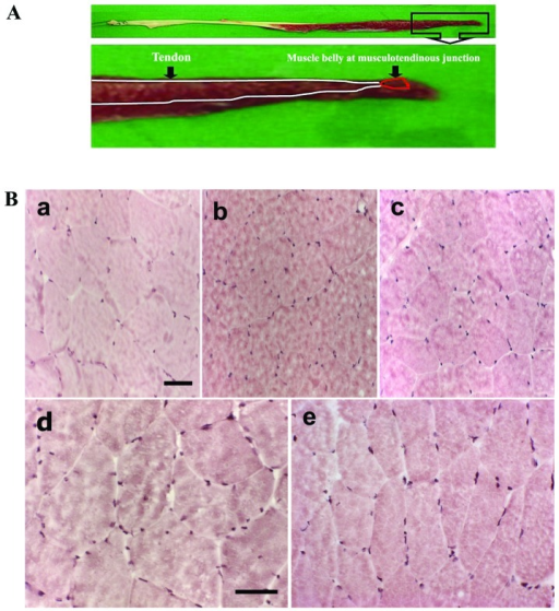 Gracilis muscle sampling and staining of morphological changes in gracilis skeletal muscle. (A) Muscle tissues sampling were prepared from the musculotendinous junction. (B) Staining of morphological changes in frozen sections of gracilis skeletal muscle using the hematoxylin and eosin (H&E). (a) Individuals of 10 years of age, (b) 20 years of age, (c) 30 years of age, (d) 40 years of age, and (e) 50 years of age. Images were obtained at an objective magnification of ×200. Scale bars, 150 μm.