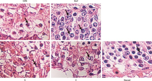 Infiltration of eosinophils (arrows) in the nasal mucosa of BALB/c mice: (A) control group, (B) Derf group, (C) S group, and (D) C group (E) steroid group (hematoxylin and eosin staining; original magnification, ×400).