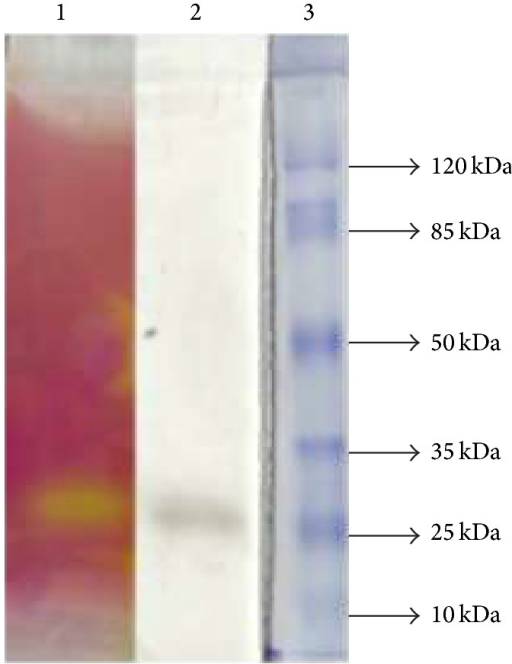 Zymographic analysis after SDS-PAGE gel electrophoresis of lipase from A. japonicus LAB01. Lane 1: lipase activity towards tributyrin; Lane 2: lipase activity towards oleic acid and dodecanol; Lane 3: molecular mass markers.