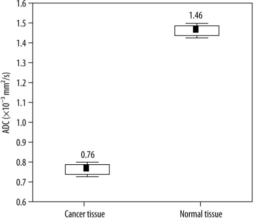 Box plots of ADC values for cancer and normal tissue. Horizontal lines indicate mean ±SE and mean ±1.96*SE (standard error – SE) which is the border of the 95% confidence interval.