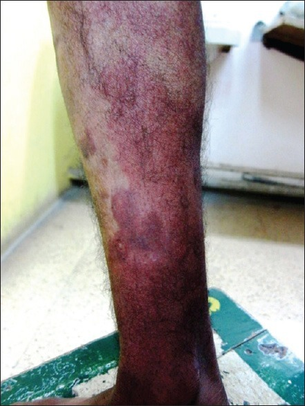 A diffuse partially blanchable erythema extending from the right ankle and involving the medial aspect of right leg up to the knee