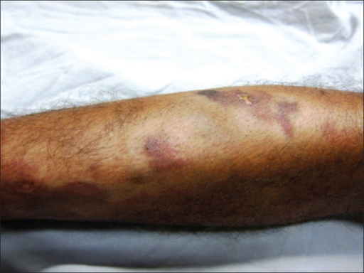 Discrete irregularly shaped partially blanchable reddish-purple macules present on the anterior aspect of right leg