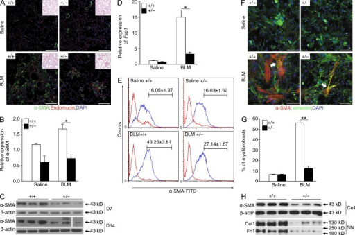 Reduced accumulation of myofibroblasts in Fstl1+/− mouse lungs.Fstl1+/− and their WT littermates were treated with saline or 2.5 U/kg bleomycin (BLM) for 14 d. (A) Immunofluorescence analysis of α-SMA expression in lung sections (nucleus, DAPI; n = 6 per group). Representative images of the staining are shown. Note that myofibroblast staining (green) is not co-located with blood vesicles (red). Insets show hematoxylin and eosin staining of the adjacent section. (B) qRT-PCR analysis of α-SMA mRNA expression in lung tissues (n = 6 per group). *, P < 0.05. (C) Western blot analysis of α-SMA expression in lung tissues 7 and 14 d after bleomycin treatment (n = 5 per group). The white line indicates intervening lanes have been spliced out. (D) qRT-PCR analysis of Fsp1 mRNA expression in lung tissues (n = 6 per group). *, P < 0.05. (E) Newly isolated lung fibroblasts from Fstl1+/− and WT mice 14 d after saline or bleomycin treatment (n = 6 per group) were stained for goat anti–rabbit IgG control (red lines) or α-SMA–FITC (blue lines). The proportions of α-SMA–positive cells (myofibroblasts) were determined. Mean percentages of α-SMA+ cells in lung fibroblasts were summarized in the upper region of each panel. The experiments were performed twice. (F) Immunofluorescent staining of myofibroblasts in lung fibroblasts newly isolated from Fstl1+/− and WT mice 14 d after saline or bleomycin treatment. Representative images of the staining are shown (n = 5 per group). Arrows indicate myofibroblasts with α-SMA– and vimentin-positive staining. Nuclear, DAPI. (A and F) Bars, 100 µm. (G) Quantification of F presents percentage of α-SMA–positive cells (myofibroblasts). **, P < 0.01. (H) Western blot analysis of α-SMA in cell extracts (Cell), type I collagen (Col1), and fibronectin (Fn1) in the medium (supernatant [SN]) of primary cultured lung fibroblasts newly isolated from Fstl1+/− and WT mice 14 d after bleomycin treatment (n = 6 per group). (C and H) β-Actin was used as a loading control. (A–D, F, and H) The experiments were performed three times. (B, D, and G) Error bars indicate mean ± SEM.