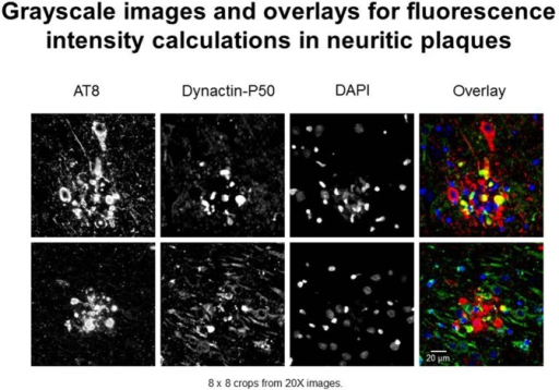Examples of immunofluorescent images used in neuritic plaque color overlays and for grayscale quantification. Separate channel images were taken and overlaid, and colocalization was assessed based on color combinations, e.g., Red + Green = Yellow. Red represents hyperphosphorylated tau (AT8) and green represents dynactin-P50 (DynP50).