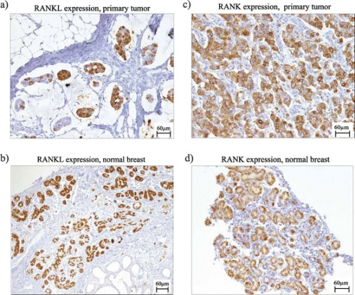 Examples of RANK and RANKL immunohistochemical staining on primary breast tumors and normal breast tissue. (a) RANKL expression on the primary tumor in a patient diagnosed with breast cancer during pregnancy (H-score: 270, 80% of cells showing RANKL expression score 3+). (b) RANKL expression on adjacent normal epithelial cells in a patient diagnosed with breast cancer during pregnancy (H-score: 265, 80% of cells showing RANKL expression score 3+). (c) RANK expression on the primary tumor in a young breast cancer patient not diagnosed during pregnancy (H-score: 140, 20% of cells showing RANK expression score 3+). (d) RANK expression on adjacent normal epithelial cells in a patient diagnosed with breast cancer during pregnancy (H-score: 210, 40% of cells showing RANK expression score 3+). RANK, receptor activator for nuclear factor κB; RANKL, receptor activator for nuclear factor κB ligand.
