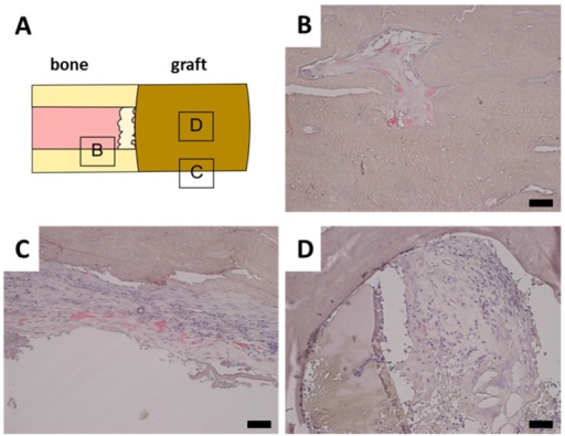 Representative tartrate resistant acid phosphatase (TRAP) stainings. Black bar represents 50 mm in each image. (A) Schematical display of TRAP staining location; (B) Normal bone has closely associated TRAP positive osteoclasts; (C) Periost around fracture displays increased presence of TRAP positive cells; (D) Tutobone scaffold with invading granulation tissue, however no closely associated TRAP positive cells.