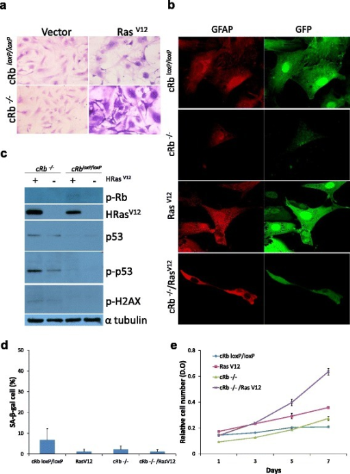 Characterization of in vitro transformed astrocytes. (a) Morphological changes of astrocytes stained with violet crystal, (b) expression of GFAP and GFP in transformed astrocytes, by immunofluorescence, (c) expression of pRb, p53, p-p53, RasV12 and p-H2AX, by Western blot with specific antibodies, (d) cell senescence, as assessed by the percentage of SA-β-galactosidase positive cells, (e) cell proliferation rate, as assessed by violet crystal violet uptake. All images are representative of at least three independent experiments