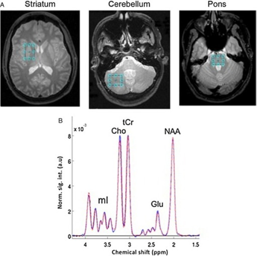(A) Voxel placement in striatum, cerebellum and pons, and (B) spectra averaged from control subjects in the striatal voxel. a.u. = arbitrary units; Cho = choline-containing compounds; Glu = glutamate; mI = myo-inositol; NAA = N-acetyl aspartate; tCr = total creatine.