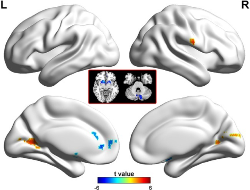 Brain regions showing abnormal ALFF in patients with BECTS.The warm (red) and cold (blue) colors represent higher and lower ALFF, respectively, in patients compared with controls (P<0.05, corrected). Color bar represents t values.