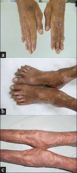 (a) Symmetric polyarthritis involving small joints of both thumbs along with psoriatic nail changes and skin involvement. Note the involvement of proximal interphalangeal (PIP) joint of left index finger. (b) Symmetric polyarthritis involving joints of toes. (c) Symmetric polyarthritis involving both knee joints