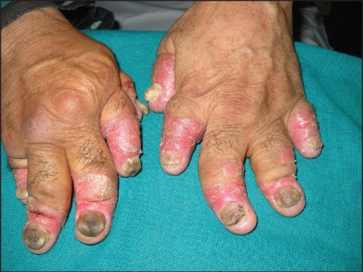 Arthritis mutilans with shortened and deformed digits and severe psoriatic nail changes