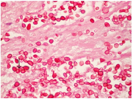 PAS stain of mesenteric lymph node biopsy showing yeasts, 1000x.