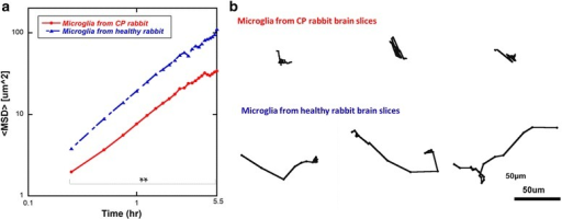 Microglial migration is impaired in brain slices from c open i microglial migration is impaired in brain slices from cp animals vs healthy animals a ccuart Images