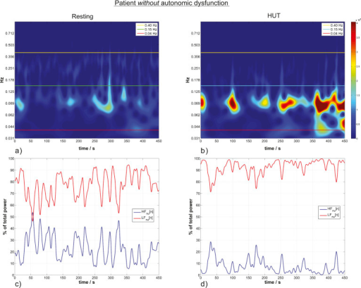HRV wavelet scalograms (a,b) and the corresponding norm | Open-i