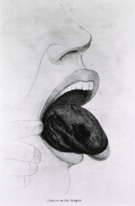 <p>Ulcerations caused by cancer on the tongue.</p>