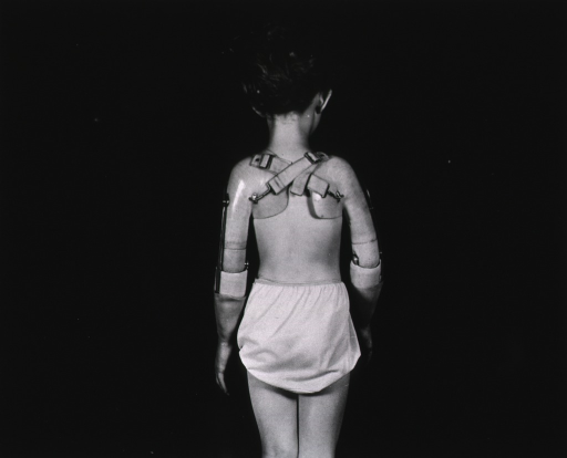 <p>A young girl with two prosthetic arms stands with her back to the camera.  She wears only undershorts.</p>