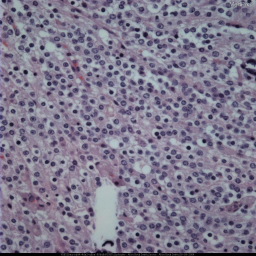 "High power image of pathology specimen demonstrates the classic ""fried egg"" appearance of an oligodendroglioma.  The cells have well defined walls with clear cytoplasm and prominent nuclei."