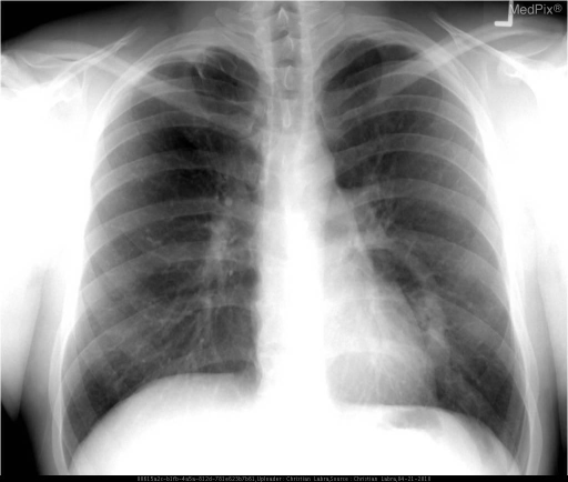 Curvilinear density noted in the region of the left lower lobe