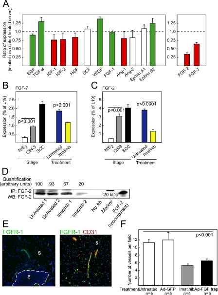 Expression of FGF-2 Is Repressed by Imatinib in Preclinical Trials, and Treatment with FGF-Trap Impairs Angiogenesis in the Neoplastic Cervix(A) Quantitative RT-PCR analysis evaluating expression of a set of growth and/or angiogenic regulatory factors in the neoplastic cervixes of 4-mo-old HPV/E2 mice treated with imatinib for 2 wk. The results are expressed as the ratio of expression (as percentage of the ribosomal protein gene L19) of imatinib-treated mice versus vehicle-treated mice. Bar colors indicate relative expression levels during the neoplastic progression (green = down-regulated expression compared with normal estrogen-treated cervix; red = up-regulated expression compared with normal estrogen-treated cervix; and white = unchanged expression compared with normal estrogen-treated cervix).(B and C) Quantitative RT-PCR analysis of FGF-7 (Student t-test, t = 15.9, p < 0.001) (B) and FGF-2 (Student t-test, t = 13.7, p < 0.001) (C) expression in the cervixes of: estrogen-treated normal mice (N/E2); HPV/E2 mice with CIN3 lesions (3 mo) or SCC (5 mo) and HPV/E2 mice treated from 3.5 mo to 4 mo of age with vehicle or imatinib.(D) Western blot (WB) analysis of FGF-2 expression following immunoprecipitation (IP) of FGF-2 from tissue lysates of neoplastic cervixes of mice untreated or treated with imatinib for 2 wk. Two individual tissue lysates are shown for each treatment, and every lysate for each treatment group consisted of the combined cervixes from five mice. Omission of the immunoprecipitating antibody was used as a negative control (No Ab-lane), and 50 ng of recombinant mouse FGF-2 was used as a positive control. Densitometric quantification is shown normalized to lane 1.(E) Immunostaining for the mitogenic signaling receptor for FGF-2, i.e., FGF receptor-1 (FGFR-1), in CIN3 lesions of the uterine cervix from HPV/E2 mice. Expression of FGFR-1 (green) was predominantly detected in the stroma and colocalized with a marker for endothelial cells (red, CD31). The expression pattern was analyzed in at least five different mice of similar histological stage. Parameters: 200× magnification; cell nuclei/DAPI, blue; dotted line marks epithelium–stroma boundary. Similar results were seen in analysis of cervical carcinoma lesions (unpublished data). Note that the scattered punctate shapes distal from the vasculature are non–cell-associated debris derived from the secondary antibody, as revealed by evaluation at high magnification and analysis of tissue sections in which the primary antibody was omitted. E, epithelium; S, stroma.(F) Quantification of vessel density in the cervical transformation zone of HPV/E2 mice at 4 mo of age following a 2-wk treatment with imatinib or 2 wk after a single treatment with adenoviral delivery of FGF-trap or control GFP. Student t-test, t = 5.8, p < 0.001.Error bars indicate the standard error of the mean.