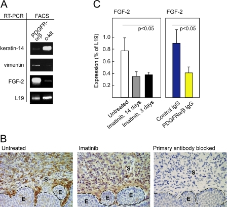 FGF-2 Is Expressed by CAFs and Repressed by Specific Inhibition of PDGF Receptor Signaling(A) Analysis of cells isolated by FACS from the cervixes of 3.5-mo-old HPV/E2 mice by sorting for expression of PDGFR-α and -β or c-kit. RT-PCR was performed to assess the expression of FGF-2, the squamous epithelial marker K14, the fibroblast cell marker vimentin, and the housekeeping gene L19 as a loading control.(B) Representative immunohistochemical staining of FGF-2 in the transformation zone of the uterine cervixes of HPV/E2 mice that had or had not been treated with imatinib displaying CIN3 lesions. The expression pattern was analyzed in at least five different mice of similar histological stage from each treatment group. Parameters: 400× magnification; dotted line marks epithelium-stroma boundary. As a control for specificity, the primary antibody was pre-blocked by incubation with recombinant mouse FGF-2 . E, epithelium; S, stroma.(C) Expression of FGF-2 analyzed by quantitative RT-PCR following a long (14 d) and a short (3 d) treatment with imatinib (Student t-test, t = 3.5, p < 0.05). Expression of FGF-2 analyzed by quantitative RT-PCR following a 3-d treatment with control IgG or inhibitory antibodies against PDGFR-α and PDGFR-β (Student t-test, t = 3.1, p < 0.05). Note that for technical reasons, a different primer set was used in this experiment compared to the experiment shown in Figure 4C, yielding different absolute values of expression (for details, see Materials and Methods). Error bars indicate the standard error of the mean.