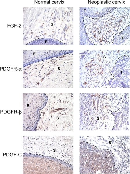 PDGF Receptors and FGF-2 Are Expressed in Human Normal Cervix and in Cervical SCCExpression of PDGF receptors and FGF-2 was assessed in human hysterectomy samples and in human cervical SCC lesions by immunohistochemistry. Representative pictures from analysis of a total of three separate human normal cervixes and SCC lesions are shown. PDGF receptor-α was exclusively expressed by stromal cells underlying the epithelium, whereas PDGF receptor-β was expressed by stromal cells and pericytes. Similarly, FGF-2 was expressed by stromal cells. Although qualitative, the staining intensity of FGF-2 is clearly lower in all of the normal human samples than in comparable analyses of neoplastic human cervixes, and consistent with the results from the mouse (Figures 4C and 5B, and unpublished data), where FGF-2 is expressed in the normal cervical stroma at low levels and clearly up-regulated in the neoplastic cervix. As in the mouse model, PDGF-CC was predominantly expressed by the cervical epithelium. Parameters: 400× magnification; dotted line marks epithelium-stroma boundary. E, epithelium; S, stroma; T, tumor.