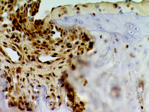 High-mobility group box protein 1 (HMGB1) expression in collagen-induced arthritis. The presence of cells expressing HMGB1 in the invading pannus of collagen-induced arthritis is shown. In this experiment, the section was stained for HMGB1 using affinity-purified polyclonal rabbit anti-HMGB1 antibodies (BD Pharmingen, San Diego, CA, USA) followed by biotin-labeled Fab2 fragments of a donkey anti-rabbit antibody (Jackson ImmunoResearch Laboratories, Inc., West Grove, PA, USA). The sections then were exposed to avidin-biotin-horseradish peroxidase (Vectastain Elite, ABC kit; Vector Laboratories, Burlingame, CA, USA), and color reaction was generated with diaminobenzidine (DAB). Reproduced with permission from Nature Insight 2002, 420: 845–846 . Copyright 2002, Macmillan Publishers Ltd.