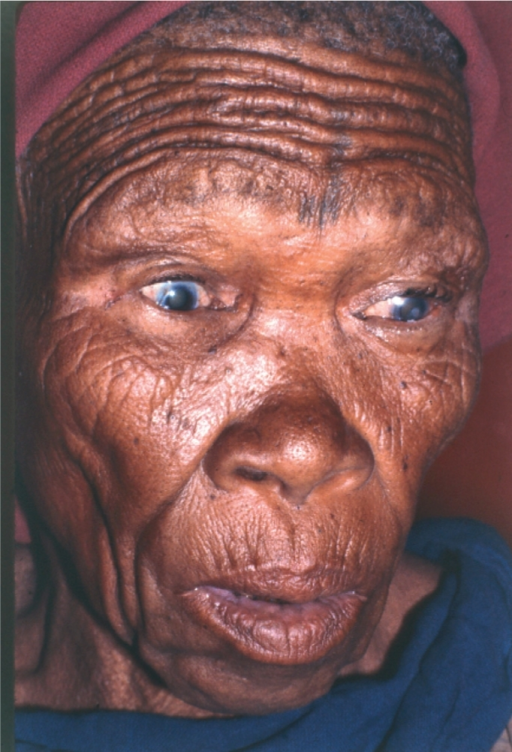 Around half the people suffering from severe visual loss will experience visual hallucinations. BOTSWANA