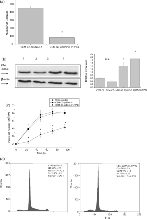 PP4c over-expression inhibits colony-forming ability, inhibits cell growth and increases apoptosis of CEM-C7 cells. CEM-C7 cells were transfected with either pcDNA3.1 or pcDNA3-PP4c. (a) 24 h post-transfection, cells were cloned in soft agar in the presence of G418 and the number of colonies was determined after 2–3 weeks. (b) Immunoblot of PP4c expression in CEM-C7 parental cells (lane 1), pcDNA3.1-transfected CEM-C7 cells (lane 2) and pcDNA.1-PP4c-transfected CEM-C7 cells (lanes 3 and 4). Each lane contains 50 μg of whole-cell lysate subjected to SDS-PAGE, followed by Western blot analysis with anti-PP4c antibody. Anti-β-actin antibody was used to reveal β-actin as a loading control. The resulting autoradiographs were analysed by densitometry. A representative autoradiograph is presented, and the bar graphs represent means ± S.E. from four independent experiments. Relative expression is the ratio of PP4c to β-actin. (c) Growth curve of CEM-C7, CEM-C7-pcDNA3.1-transcfected cells and CEM-C7-pcDNA3.1-PP4c-transfected cells over 96 h. Viable cell density was determined by nigrosin dye exclusion. Results are expressed as the means ± S.E., and are representative of data obtained from five separate experiments, *P < 0.01 compared with vector only and parental cells. (d) Cell cycle analysis of CEM-C7-pcDNA3.1-transfected cells and CEM-C7-pcDNA3.1-PP4c-transfected cells. DNA content was quantified by propidium iodide staining of fixed cells and fluorescence flow cytometry. Results are represented as the means ± S.E. (n = 5). Representative histograms are shown.