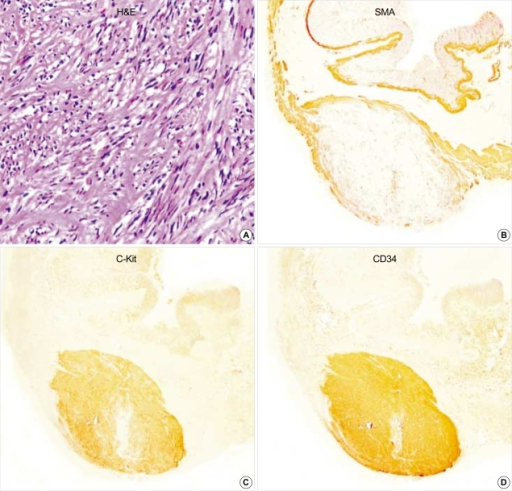 Gastric GIST (case 1). The tumor is composed of interlacing fascicles of spindle cells with eosinophilic cytoplasm. The tumor cells show patch immunopositivity for SMA, and express c-Kit and CD34, strongly and diffusely. (A: H&E,×200, B: SMA, ×40, C: c-Kit, ×40, D: CD34 immunostaining, ×40).