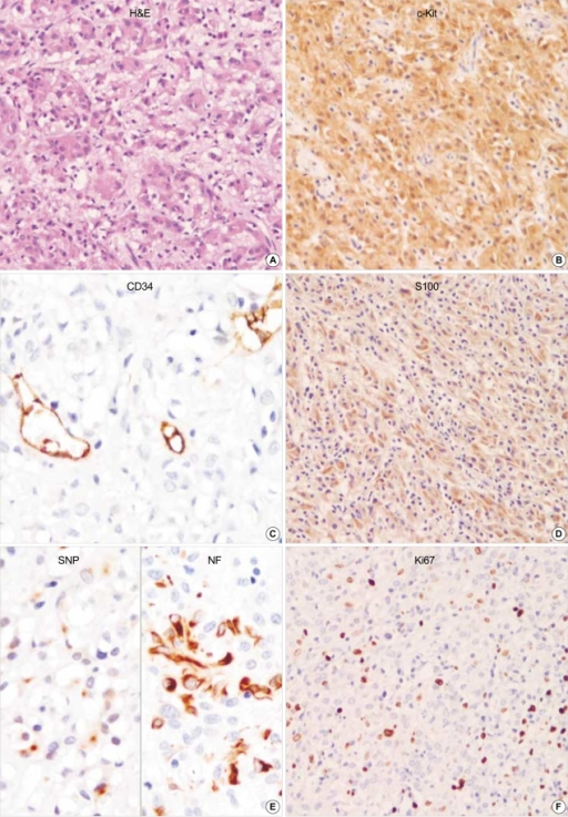 GANT reveals mainly epithelioid feature. Focal cytoplasmic vacuolization is seen. The tumor cells are robustly positive for CD117 (c-kit) but negative for CD34. S-100 protein, synaptophysin and NF are partially positive in neoplastic cells. Ki67 labelling index is high. (A: H&E, ×200, B: c-Kit, ×200, C: CD34, ×400, D: S100, ×200, E: left: Synaptophysin, right: Neurofilaments, ×400, F: Ki67 immunostaining, ×200).