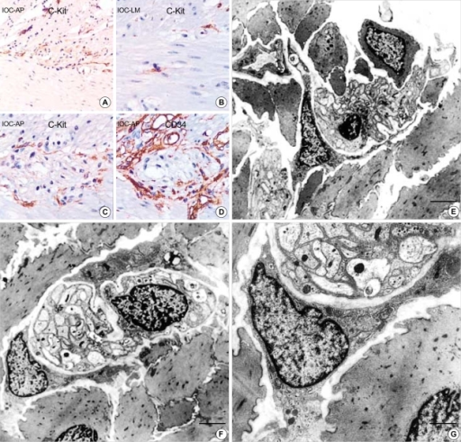 (A) Normal adult (M/45 yr) small intestine. (A-D) The immunohistochemical staining for c-Kit and CD34 shows immunoreactive interstitial cell of Cajal in myenteric plexus (A: c-Kit, ×200, B: ×400, C: ×400, D: CD34, ×400). (E-G) Ultrastructure of the interstitial cell of Cajal in normal stomach. It has slender cytoplasmic processes and the nucleus is heterochromatic and lobulated in apprearance. Two interstitial cell of Cajal hug the myenteric plexuses composed of many well-delineated peripheral nerves surrounded by Schwann cell cytoplasm and continuous external lamina (F). The cytoplasm of ICC has well-defined organelles such as rough endoplasmic reticulum, mitochondria, Golgi apparatus and caveolae. Gap junctions (arrows) are present but no external lamina is noted (G). (uranyl acetate and lead citrate stain E-F: bar: 2 µm, G: bar: 1 µm, E: ×2,500, F: ×3,000, G: ×8,000).