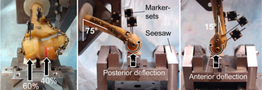 Test setup. The specimen is placed on a seesaw for physiological force transmission. Marker-sets for optical motion tracking are attached to all fragments. Left and middle: Setup for flexion test with angulation of the shaft of 75° to the vertical. Right: Setup for extension test with 15° angulation to the vertical. The vertical reaction force of the seesaw is indicated by F.