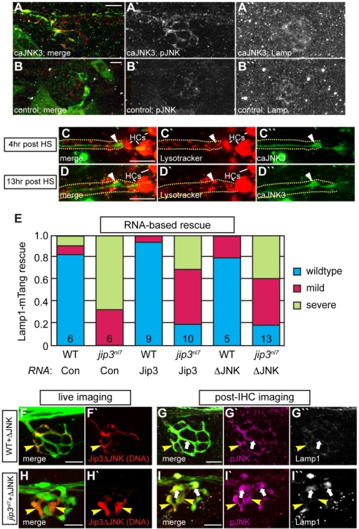 Increased levels of pJNK did not cause lysosome accumulation in jip3nl7.(A) Induction of caJNK3-EGFP at 4 dpf increased the level of pJNK immunofluorescence (middle) in a subset of axon terminals but did not lead to lysosome accumulation as compared to control (B). Scale bars = 10 µm. (C, D) This result was confirmed by Lysotracker red labeling. Surrounding, non-caJNK3-EGFP positive axons show similar numbers, size and density of lysosomes both 4 hours and 13 hours after induction of caJNK3. The pLL nerve was visualized by phase contrast optics and is outlined. Arrowhead indicates axonal swellings caused by high levels of activated JNK. HC denotes neuromast hair cells that strongly label with Lysotracker red. (E) Whole embryo expression of Jip3 and Jip3ΔJNK by mRNA injection partially suppressed the accumulation of lysosomes in jip3nl7 mutant axon terminals at 3 dpf as assayed by expression of Lamp1-mTangerine in pLL neurons. Wildtype – Lamp1-mTangerine positive small puncta only; Mild – small puncta and aggregates visible; Severe - few to no small puncta apparent and large aggregations of Lamp1-mTangerine. (F–I) Injection of 10 pg of a DNA construct encoding Jip3ΔJNK-mCherry rescued lysosome accumulation in jip3nl7 axon terminals. Larvae that expressed Jip3ΔJNK-mCherry (red) in pLL axons and carried the neurod:EGFP transgene were first imaged live (F,H) to identify expressing axon terminals. They were then individually fixed, stained for pJNK (pseudo-colored magenta) and Lamp1 (white), and subsequently the same axon terminals were reimaged (G,I). Arrowheads point to axon terminals in wildtype (F,G; NM1) and jip3nl7 (H,I; NM5) that express Jip3ΔJNK-mCherry (red) at 5 dpf. Arrows point to axon terminals in the same NMs that did not express this construct. Note that expression of Jip3ΔJNK-mCherry in jip3nl7 completely rescued lysosome accumulation (yellow arrowheads in I″) but failed to rescue high levels of pJNK (yellow arrowheads in I′).