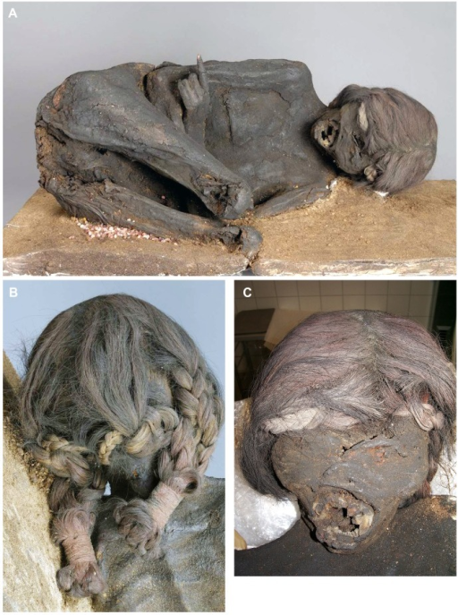 Macroscopic aspect of the mummy.(A) Frontal view of the mummy which reveals typical squatting position (although the legs are broken off below both knees). (B) External appearance of the hair plaits which are fixed at their ends by tiny ropes of foreign material. (C) Detailed view of the mummy's face. Note the transverse defect above the left eye. Both eyes are closed and covered by skin. The mouth is ovally opened, the frontal teeth are missing.