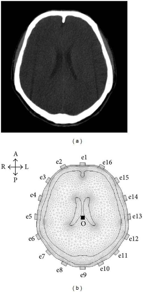 CT image and 2D finite element model of human head used for simulation experiments. (a) A head CT image of a healthy volunteer was used to construct a finite element model. (b) A finite element model (FEM) with an ideally symmetrical structure was constructed according to the right boundary of each layer of head tissues in the head CT image. The 2D head model consisted of 17659 triangular elements, 9200 nodes, and 16 electrodes (A: anterior; P: posterior; L: left; and R: right).