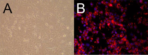 Co-culture and characterization of rabbit urethral epithelial cells on dHAS. (A) dHAS seeded with rabbit urethral epithelial cells were observed under an inverted microscope 2 weeks after co-culture; (B) Cell culture with epithelium origin was confirmed by red fluorescence of cytokeratin 18 (blue: DAPI, magnification at ×400).
