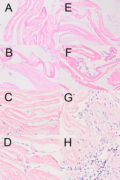HE staining of the cell-seeded dHAS and dHAS after subcutaneous implantation. (A–D): HE stainings of cell-seeded dHAS engrafts at week 1, 2, 4, and 8 after subcutaneous implantation; (E–H): HE stainings of dHAS engrafts at week 1, 2, 4, and 8. Fewer inflammatory infiltrations in dHAS xenografts were found, in comparison to AM grafts (magnification at ×200).