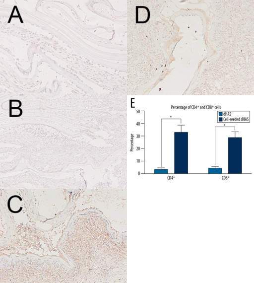 Immunohistochemical analyses of CD4+ cell and CD8+ cell infiltrations. (A) CD4+ staining in cell-seeded dHAS engrafts; (B) CD8+ staining in cell-seeded dHAS engrafts; (C) CD4+ staining in dHAS engrafts; (D) CD8+ staining in dHAS engrafts (magnification at ×200); (E) Semi-quantitative results revealed fewer CD4+ cell and CD8+ cell infiltrations in cell-seeded dHAS engrafts after subcutaneous implantation at week 2, indicating a lower immune response. In contrast, there was significant accumulation of CD4+ cells and CD8+ cells in dHAS group (* P<0.05).