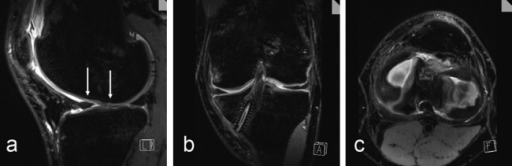 High-resolution, isotropic, 0.5 × 0.5 × 0.5-mm fat-suppressed 3-D proton density (PD) SPACE sequence (TR/TE: 1500/34) to assess postoperatively the cartilage repair tissue 6 months after microfracture (arrows, sagittal) (a), the position and orientation after anterior cruciate ligament surgery (coronal) (b), and the menisci (axial) (c) in a 30-year-old male patient using multiplanar angulated reconstruction from one isotropic data set.