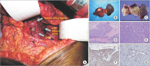 (A) Surgical field after removal of specimen showed splenic artery stump, left adrenal gland, and superior mesenteric artery (SMA). Gross specimen consists of distal pancreas with tumor mass and spleen. (B, C) On cross cut section, shows roughly ovoid white gray mass (8 cm × 6.5 cm), 1.5 cm from resection margin. Mass is composed of white gray solid creamy tissue with focal cystic change and necrosis. Mass seems to infiltrate into peripancreatic fat tissue. Several enlarged lymph nodes are found in peripancreatic fat tissue. Small clear tumor cells are spreading with trabecular configuration, and destruction of surrounding exocrine tissue show fibrosis, infiltration of mononuclear cells and disarrangement of parenchymal structure were apparent at splenic side of tumor, indicating diffuse chronic pancreatitis (D: H&E, ×10). Extensive angioinvasion is found (E: Victoria blue H&E, ×20). Tumor cells were positively stained for chromogranin A (F, ×20) and CD53 (G, ×20).