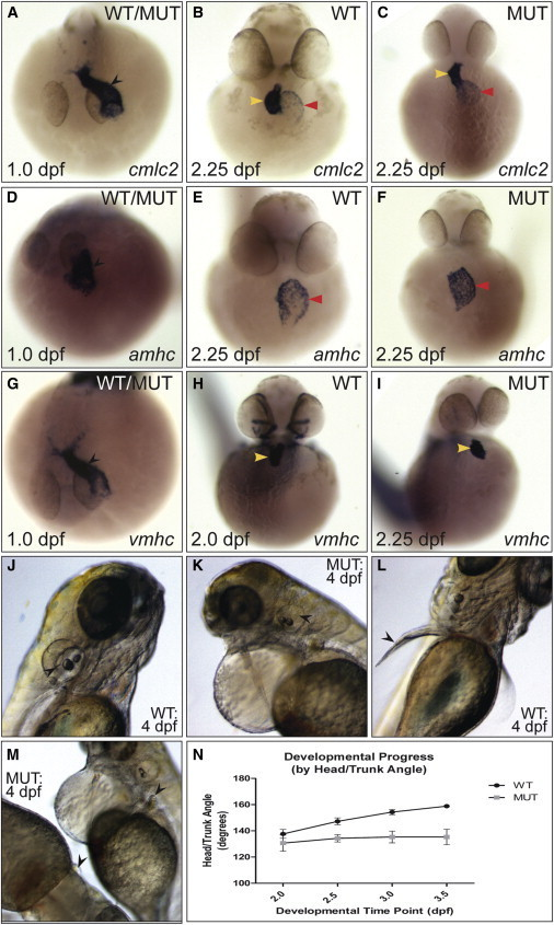 "Characterization of the log Mutant Phenotype(A–I) Expression of cardiac markers in (WT) and log mutant (MUT) embryos. While at 1.0 dpf the linear heart tube (black arrowhead) was apparent in all embryos (""WT/MUT""), at 2.25 dpf log mutant hearts were unlooped, with the ventricle directly above the atrium (yellow and red arrowheads, respectively).(J–M) At 4.0 dpf, semicircular canals in the otic vesicles (black arrow heads in J and K) and elongation of the pectoral fins (black arrowheads in L and M) were absent in mutant embryos.(N) Change in head/trunk angle over time in WT and mutant embryos (10 WT and 20 mutants measured per time point).See also Figure S1."