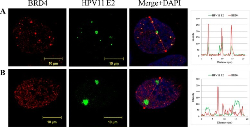 HPV replication foci in U2OS cells. Immunofluorescence analysis of U2OS cells transfected with HPV11 genome. U2OS cells were transfected with wt HPV11 minicircle genomes and grown on coverslips. Six days after transfection cells were fixed and immunostained with antibodies for HPV11 E2 (green) and BRD4 (red). Cell nuclei were detected by DAPI. Analysis was carried out at least three times starting from cell transfections. a and b represent cells with different number and size of HPV11 E2 foci. On the right panels, the intensity profiles are shown