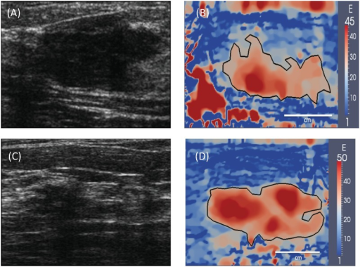 (A) and (C): B-mode ultrasound images of two typical invasive ductal carcinomas. (B) and (D): Corresponding Young's modulus images generated using elasticity imaging. The tumor boundary is represented by a black curve that is drawn using 50 peak tumor modulus value. The modulus distribution within the tumors is heterogeneous and the margins of the tumors are rough.